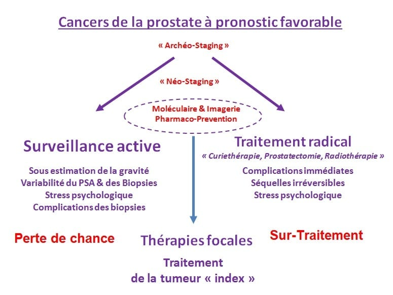 Image cancers prostate pronotic favorable