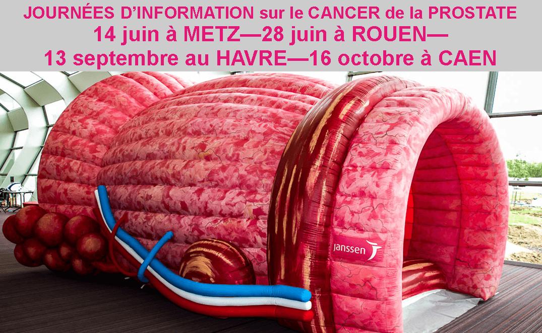 Cancer de la prostate : 4 dates pour s'informer