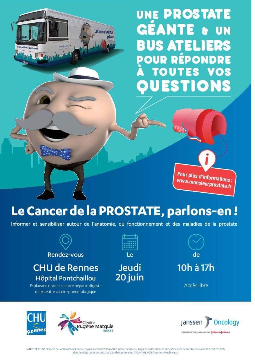 Le Prostate Tour à Rennes